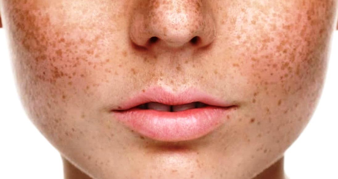 5 Cara Menghilangkan Bintik Hitam di Wajah dengan Bahan Alami